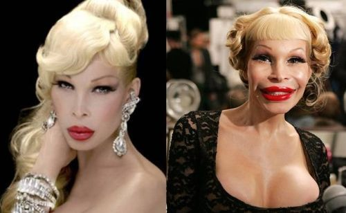Plastic Surgery Gone Wrong: 26 Worst Celebrity Before And After