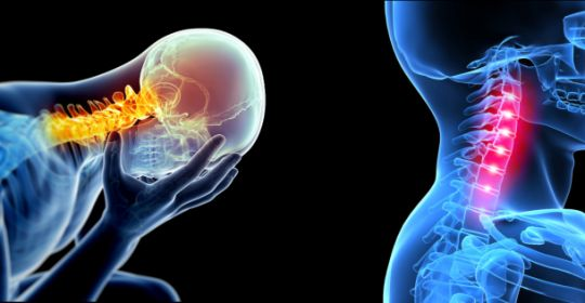 Cervicogenic Headache: causes and cure - Metro Physiotherapy www.metrophysio.co.uk