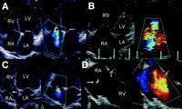 Tricuspid valve on ultrasound.Figure