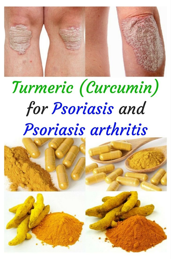 Turmeric (curcumin extract) is a powerful anti-inflammatory herb with liver detox properties. Highly recommended for Psoriasis and Psoriasis arthritis #Turmericpsoriasis #Turmericpsoriasisarthritis #Turmericeczema #Turmericskin #Turmericinflammation