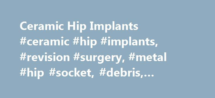 Ceramic Hip Implants #ceramic #hip #implants, #revision #surgery, #metal #hip #socket, #debris, #artificial #hips http://lease.nef2.com/ceramic-hip-implants-ceramic-hip-implants-revision-surgery-metal-hip-socket-debris-artificial-hips/  # Ceramic Hip Implants Hip replacement is a very successful orthopedic procedure. More than 90 percent of patients are relieved of their pain and regain their normal mobility. On average, implanted hips can last as long as 20 to 25 years. After the implant…