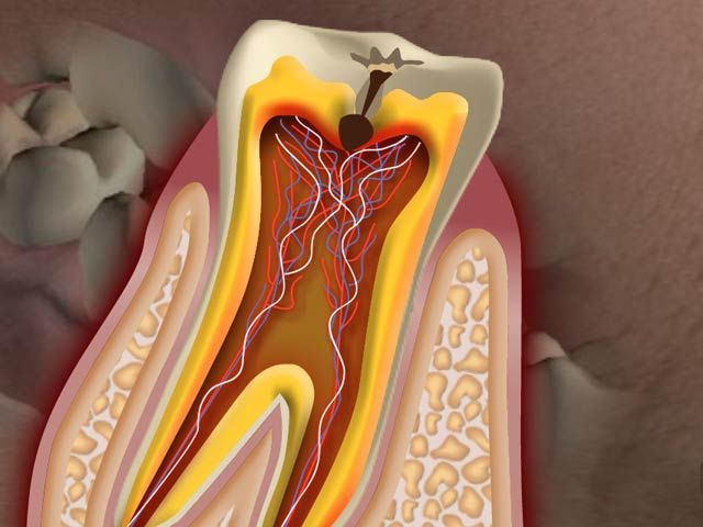 What is a Cavity | Dental Video