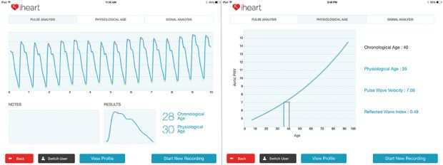 iHeart Gadget and App claims to predict heart disease and more | TweakTown.com