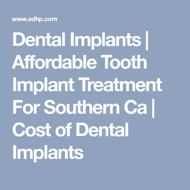 Dental Implants | Affordable Tooth Implant Treatment For Southern Ca | Cost of Dental Implants