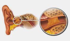 Il metodo naturale per rimuovere i tappi di cerume