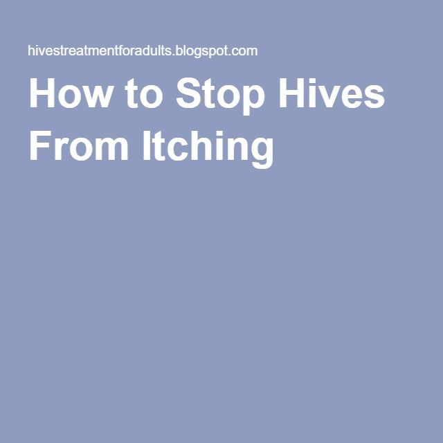 how to get hives to stop itching