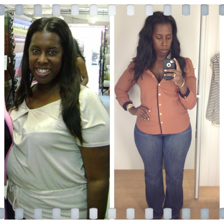 Weight loss surgery richmond va
