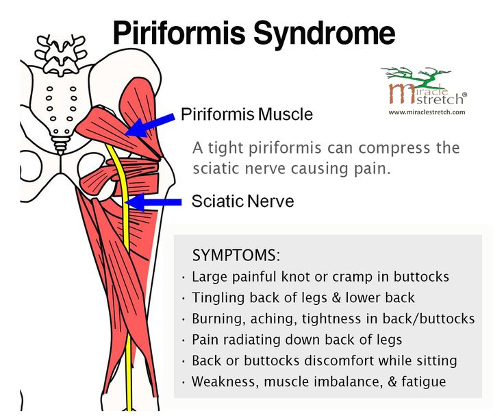 Learn the Symptoms of Piriformis Syndrome. Get relief with focused stretching - the Piri-Stretcher® is available here www.miraclestretch.com/?click=p524