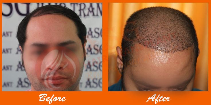 Hair transplant surgery is the best advancement in the field of medical science. It is the best way to get a permanent solution of this problem. People who are suffering from hair loss, must go for hair transplant surgery as it gives the best, safe and scar free results.