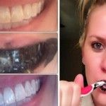 Active carbon is the only thing you need to whiten your teeth. It may seem messy, and even disgusting, but this method has helped many people to whiten their teeth successfully. Charcoal is one of the most powerful gift of nature, and it has proven to be...