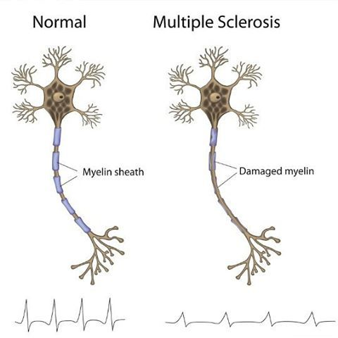 What is MS? MS – Multiple sclerosis is a medical condition that affects various parts of the human body just as the name implies. This condition makes lesions to develop in both the brain and the spinal cord of the patient. Due to the central and sensitive role the brain plays in the body,...