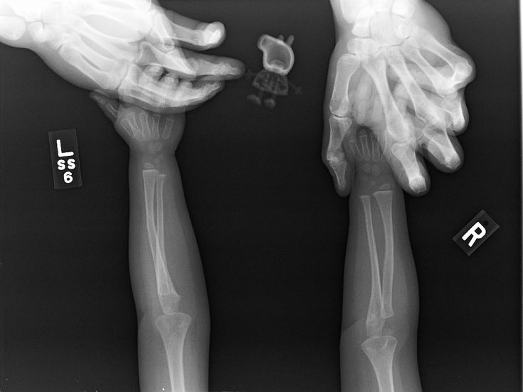Funny Xray Tech Memes : Love radiography other radiology rad tech and humor