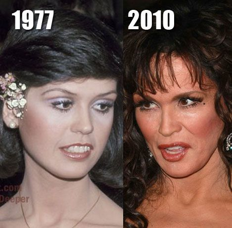 Marie Osmond before and after botox and brow lift plastic surgery?