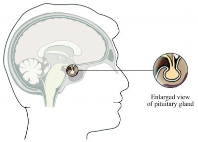 If a person has Cushing's disease, it means that a group of abnormal cells has built up in the pituitary gland to form an ACTH-producing pituitary tumor. These abnormal cells produce ACTH, just as normal pituitary gland cells do—only far too much. The excess ACTH travels to adrenal glands. The adrenal glands are then bombarded with signals to produce more and more cortisol. As a result, the adrenal glands continuously secrete too much cortisol.