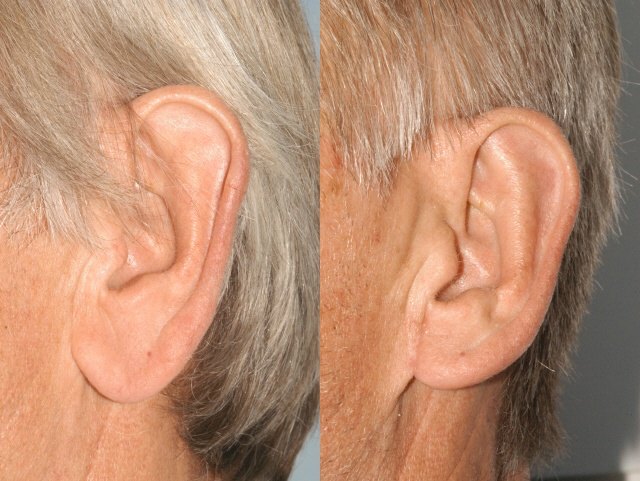 67 Year Old Earlobe Reduction Before Amp After Photos
