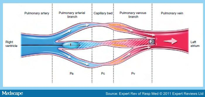 pulmonary edema and pulmonary capillary wedge pressure - Google Search