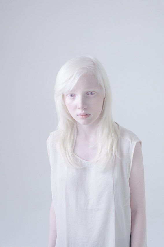xxx Asian girl albinos