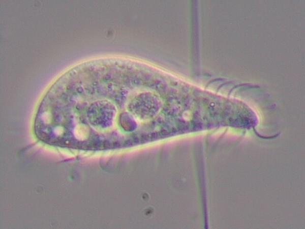 LISTOSTOMADOS. PLEUROSTOMIDOS. Acineria uncinata (1000x)