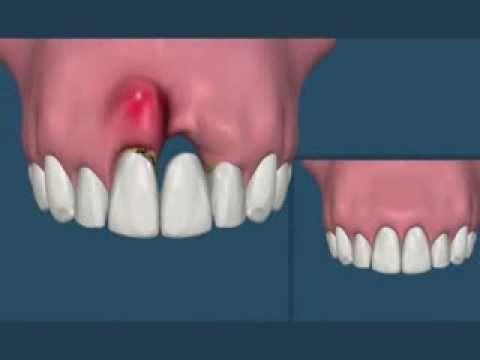 Compare: Ponte Fixa ou Implante?