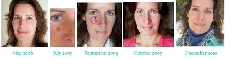 Things Happen: My Skin Graft and Melanoma in situ