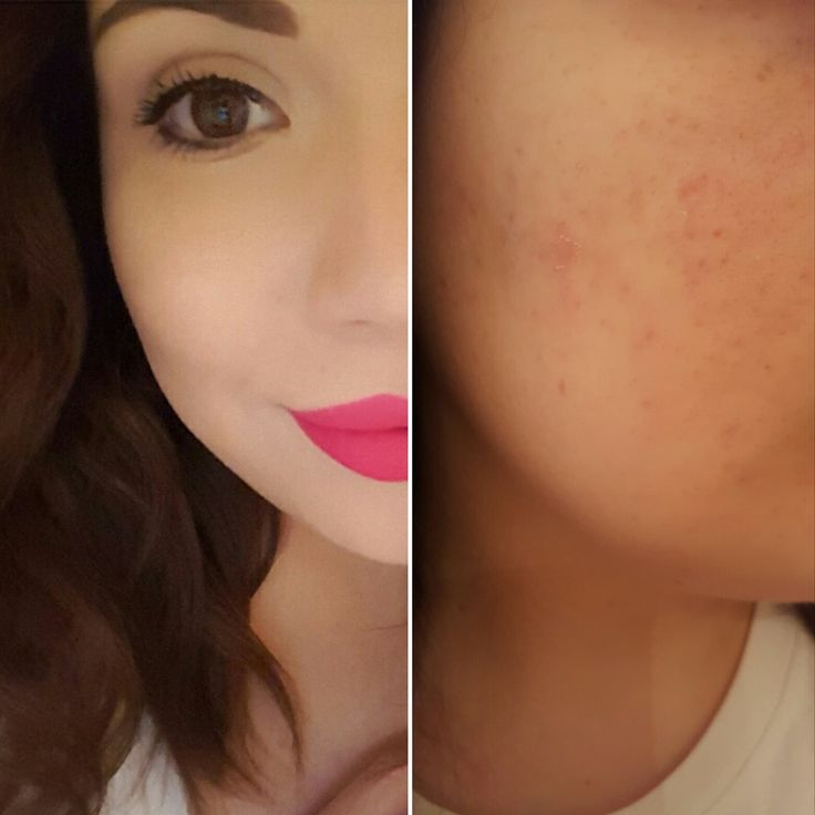 How to Cover Up Acne Scars With Makeup! #makeup #acne #scars #foundation #concealer