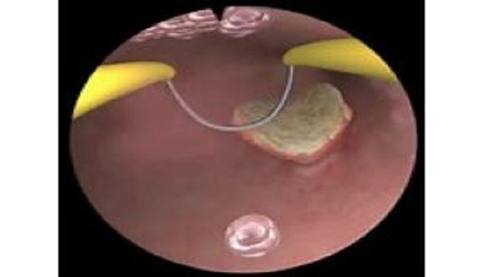 Global Hysteroscopic Endometrial Resection Procedures Sales Market 2017 - Stryker, Olympus Corporation, WISAP Medical Technology, Centrel, OPTOMIC - https://techannouncer.com/global-hysteroscopic-endometrial-resection-procedures-sales-market-2017-stryker-olympus-corporation-wisap-medical-technology-centrel-optomic/