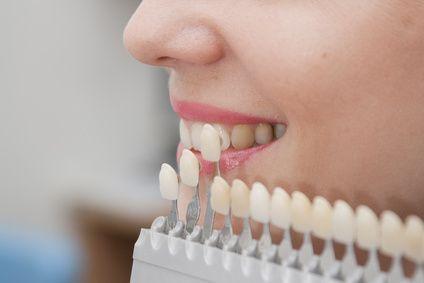 Le faccette #dentali, che il medico applica sulla superficie esterna dei #denti, sono un'ottima soluzione #estetica per migliorarne l'aspetto.