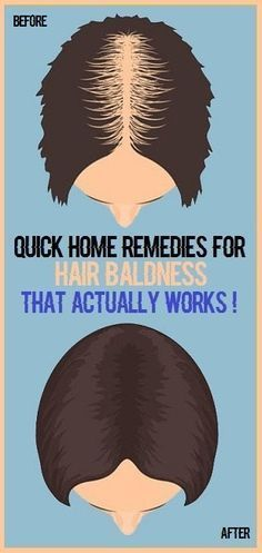 10 Quick Home Remedies For Hair Baldness That Works!