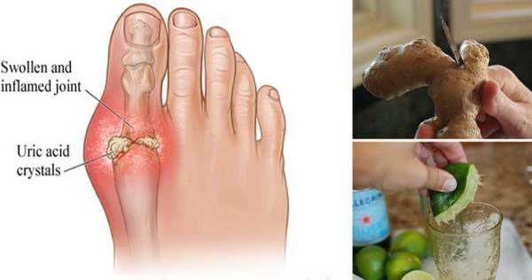 Do you have one of the most common types of arthritis known as gout? If you do