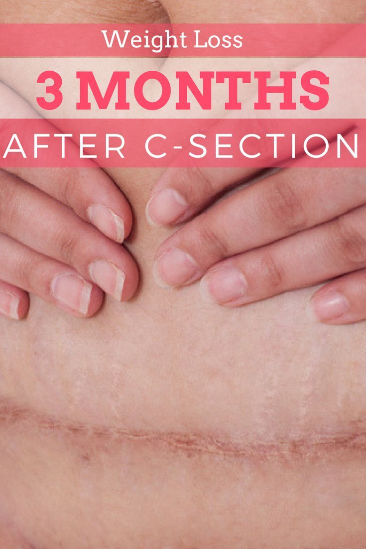 Who else wants to get rid of their c-section belly without the anxiety and stress? Here is where I am in my weight loss journey 3 months after c section. via @easylivingtoday