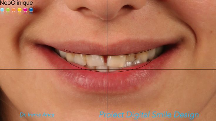 http://www.neoclinique.ro/ro/noutate/117/servicii-de-estetica-dentara-la-neoclinique/
