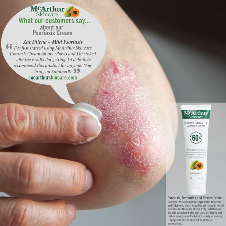 """McArthur Skincare What our customers say about our Psoriasis, Dermatitis and Rashes Cream...  Zac Dilena – Mild Psoriasis """"I've just started using McArthur Skincare Psoriasis Cream on my elbows and I'm stoked with the results I'm getting. I'd definitely recommend this product for anyone. Now bring on Summer!!!""""  McArthur Skincare Psoriasis, Dermatitis and Rashes Cream contains the active natural ingredients Aloe Vera, and Chickweed which is traditionally used in herbal medicine for the…"""