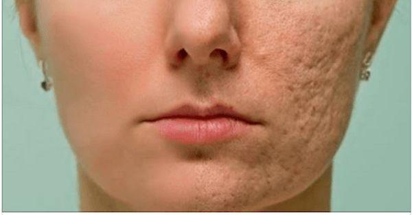 Протрите этим любой шрам, морщину или пятно на коже и посмотрите, как они исчезнут через несколько минут!Даже врачи удивлены! — Wisestorie