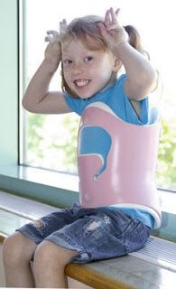 Scoliosis Brace Types   My first brace looked like this one..