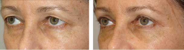 Before (left) bilateral upper blepharoplasty and lateral pretrichial brow lift a