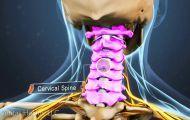 Cervical Radiculopathy Video