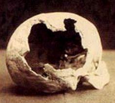 Lizzie Borden's stepmother, Abby Borden's skull.