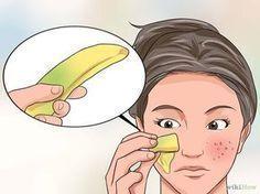 Beseitigen von großen Poren und Hautunreinheiten – Rosa Heinrich