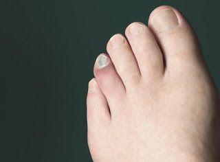 Povedzte zbohom opuchnutým nohám a slabému krvnému obehu: Konzumujte túto ingredienciu každý deň | Domáca Medicína