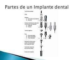 Resultado de imagen para transferencia implantes dentales