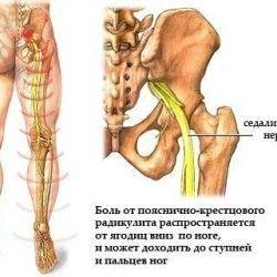 Глубокие скручивания позвоночника природой не задуманы, но это не запрещает нам делать повороты вокруг вертикальной оси. Самое главное во время скруток использовать силу мышц спины и ни в коем случае не применять руки в качестве рычагов для того, чтобы увеличить амплитуду движения. Строение позвоночного столба (кроме шейного отдела) в большей степени предполагает такие движения, как […]