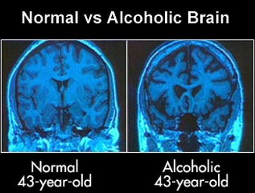 Healthy brain and alcoholic brain, compared. Good reason to stop drinking, right?