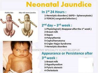 Neonatal Jaundice::: is always pathologic if it appears before the first 24 hours... physiologic jaundice occurs after the first 24 hours... Coombs negative, unconjugated hyperbilirubinemia should be suspicious for G6PD in babies less than 24 hours old