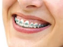 Light Blue Braces