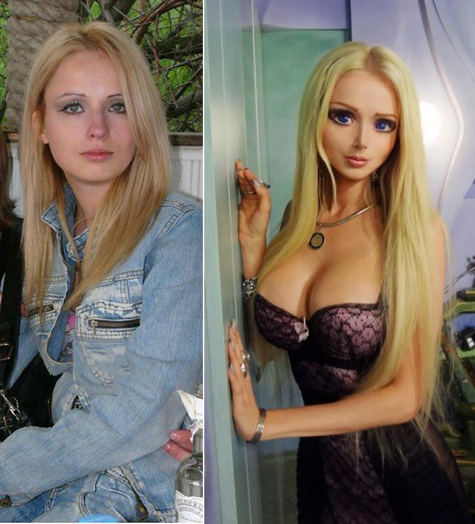 Valeria Lukyanova reallife Barbie Before and After Plastic Cosmetic Surgery (Images)