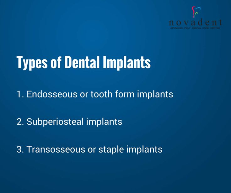 Types of ‪#‎Dental‬ Implants 1. Endosseous or tooth form ...