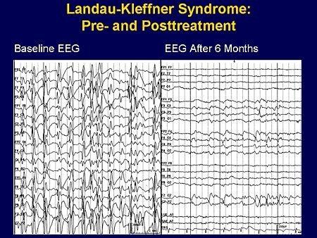 Landau-Kleffner Syndrome: Link to medscape; SPECIAL SYNDROMES OF STATUS EPILEPTICUS , PRESENTED BY JAMES J. RIVIELLO, JR, MD