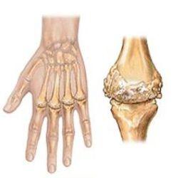Medicines Used To Treat Rheumatoid Arthritis