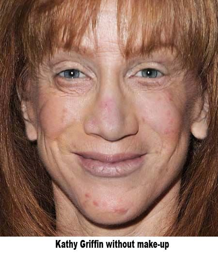 Kathy Griffin Without Make-Up \ is this after reconstruction?? yikes