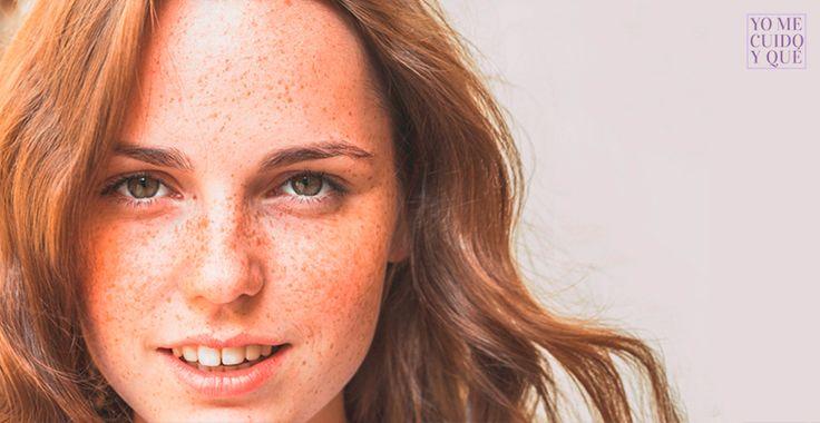 ¿Sabes lo que es la #Biotina? Es una Vitamina que todos los seres vivos necesitan en su sistema, tanto que un déficit provoca la pérdida de cabello, así como alteraciones en la grasa facial. Os contamos más en el post de hoy en #YoMeCuidoyQué